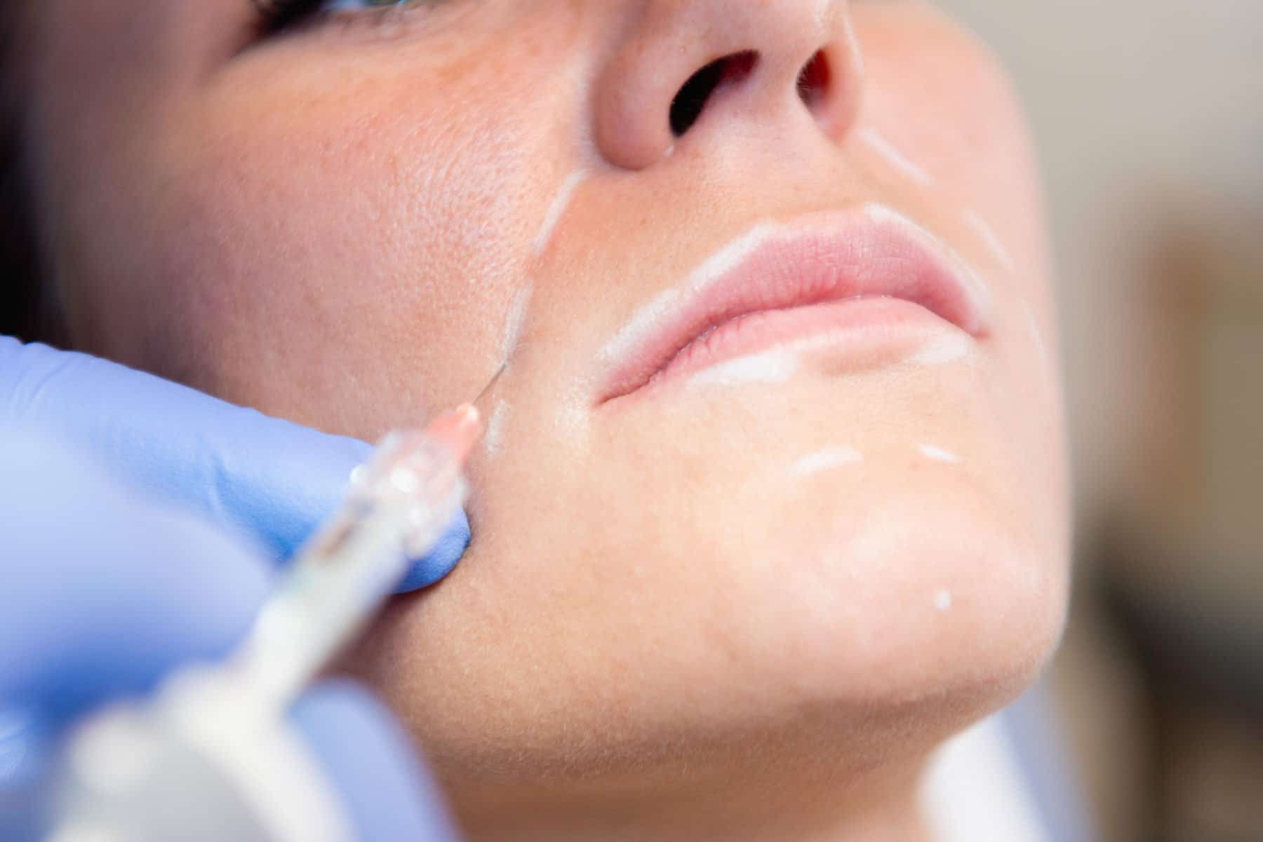 Medical Aesthetics Dermal Fillers