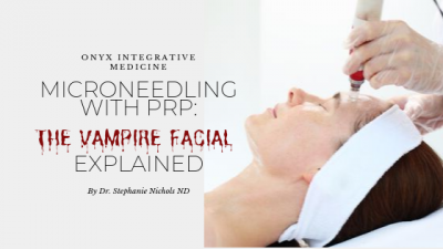 Microneedling facials with PRP Onyx Integrative Medicine