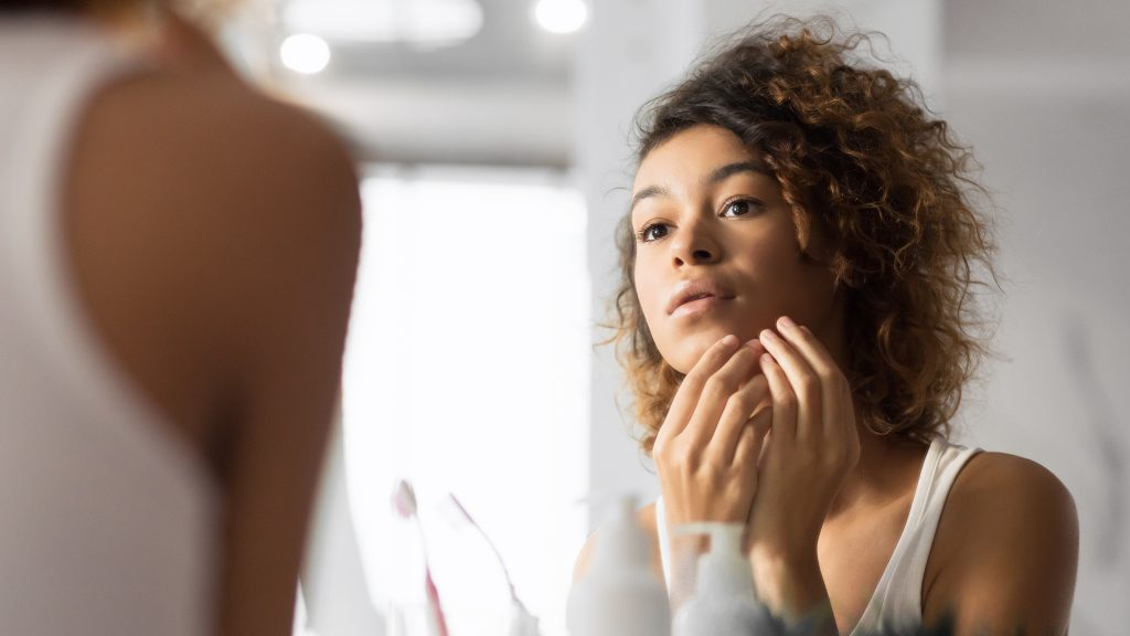 what causes acne? gilbert naturopathic doctor