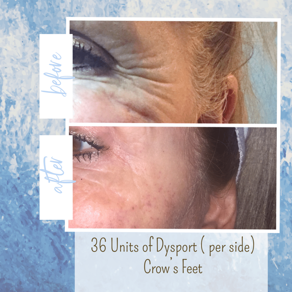 botox before and after crows feet gilbert az