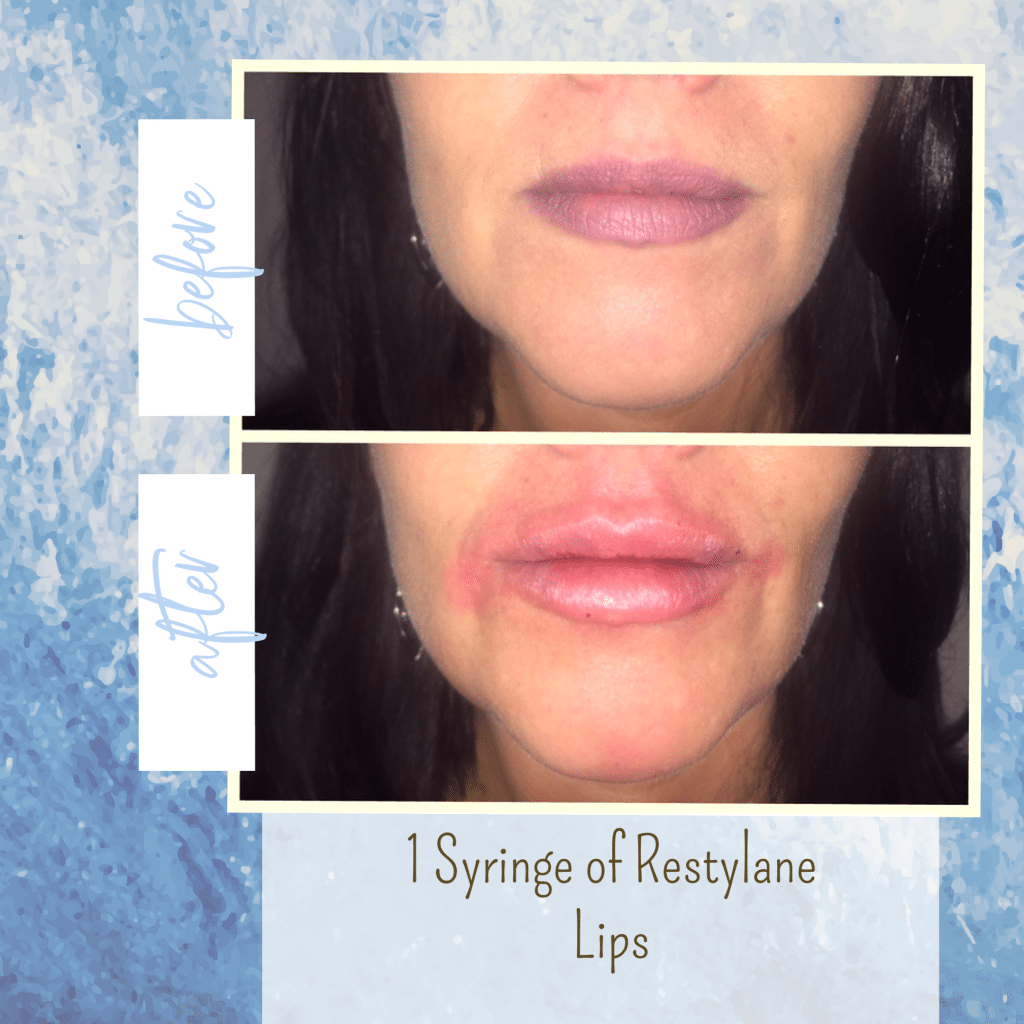 Lip injections gilbert AZ