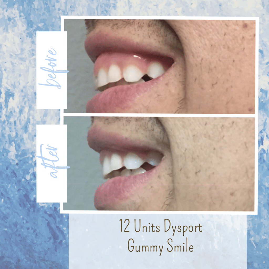 botox before and after gummy smile gilbert az