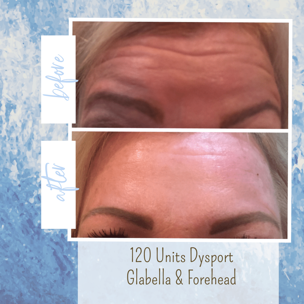 botox before and after forehead lines gilbert az
