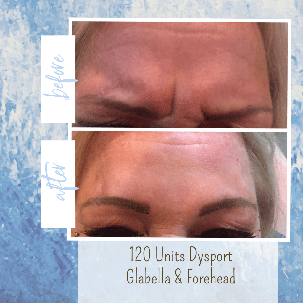botox before and after frown lines gilbert az