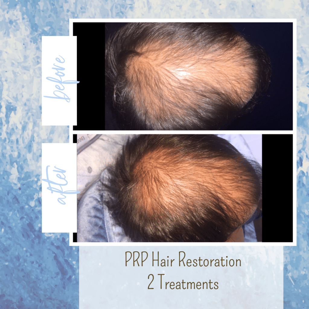 PRP hair restoration gilbert az