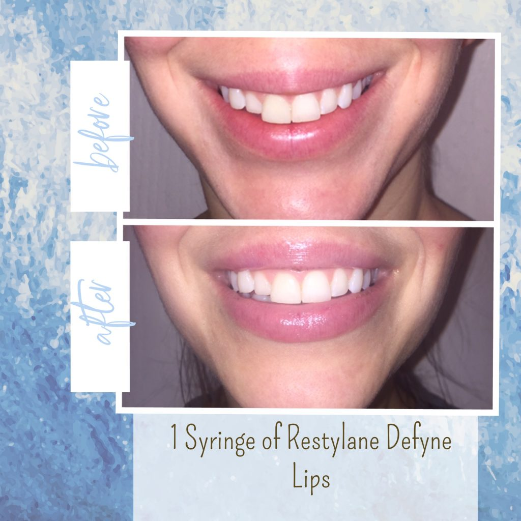 lip injections gilbert az
