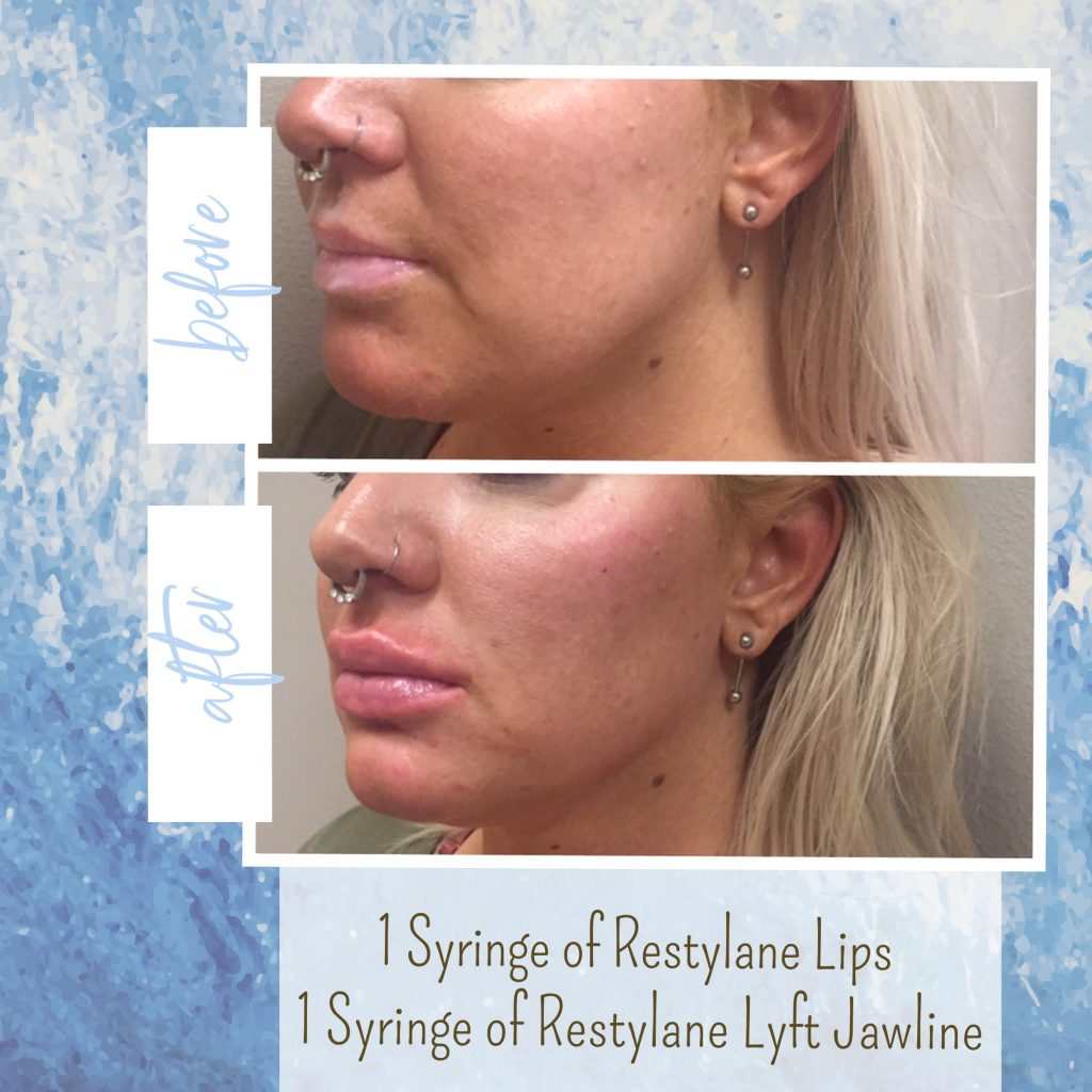 jaw filler and lip injections gilbert az
