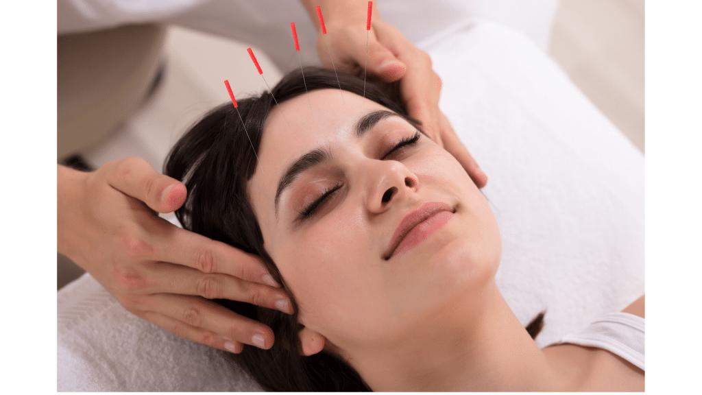 Acupuncture for TMJ | Gilbert AZ | Onyx Integrative ...