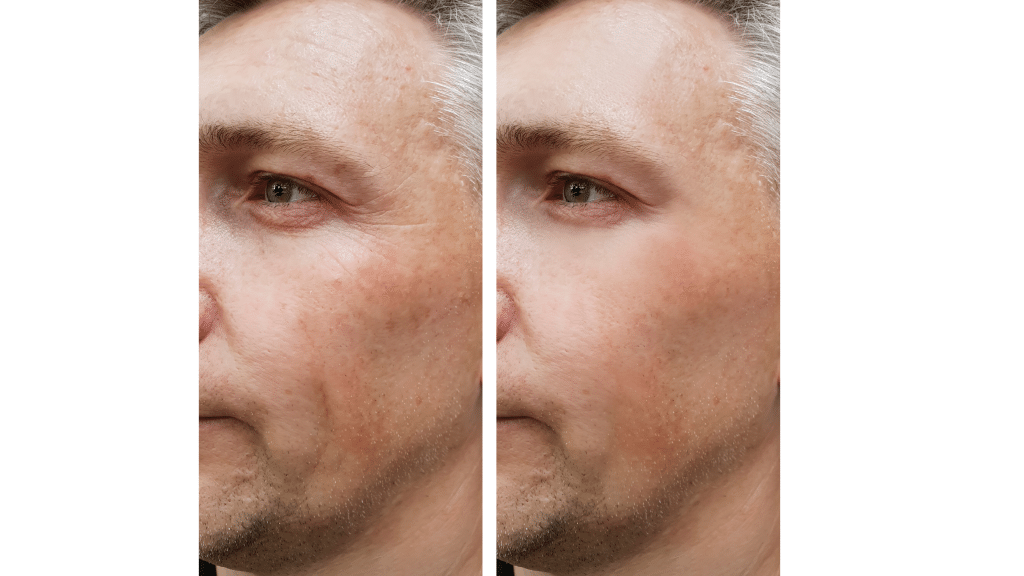 microneedling before and after gilbert az