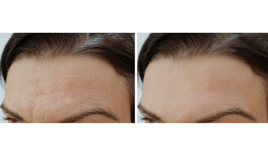 benefits of microneedling gilbert az
