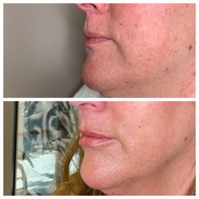lip injectiojns before and after gilbert az