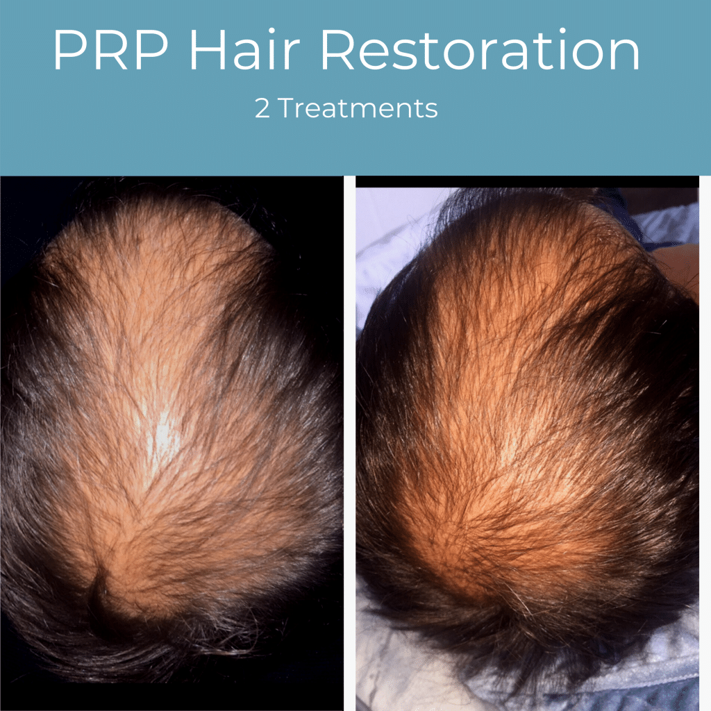 PRP hair restoration before and after gilbert az