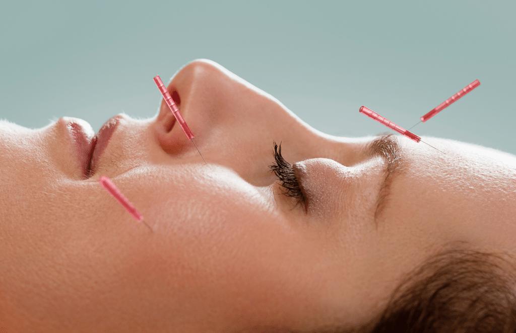 acupuncture facial gilbert az