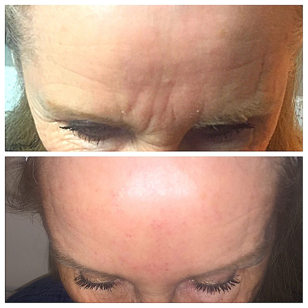 forehead before and after botox gilbert az