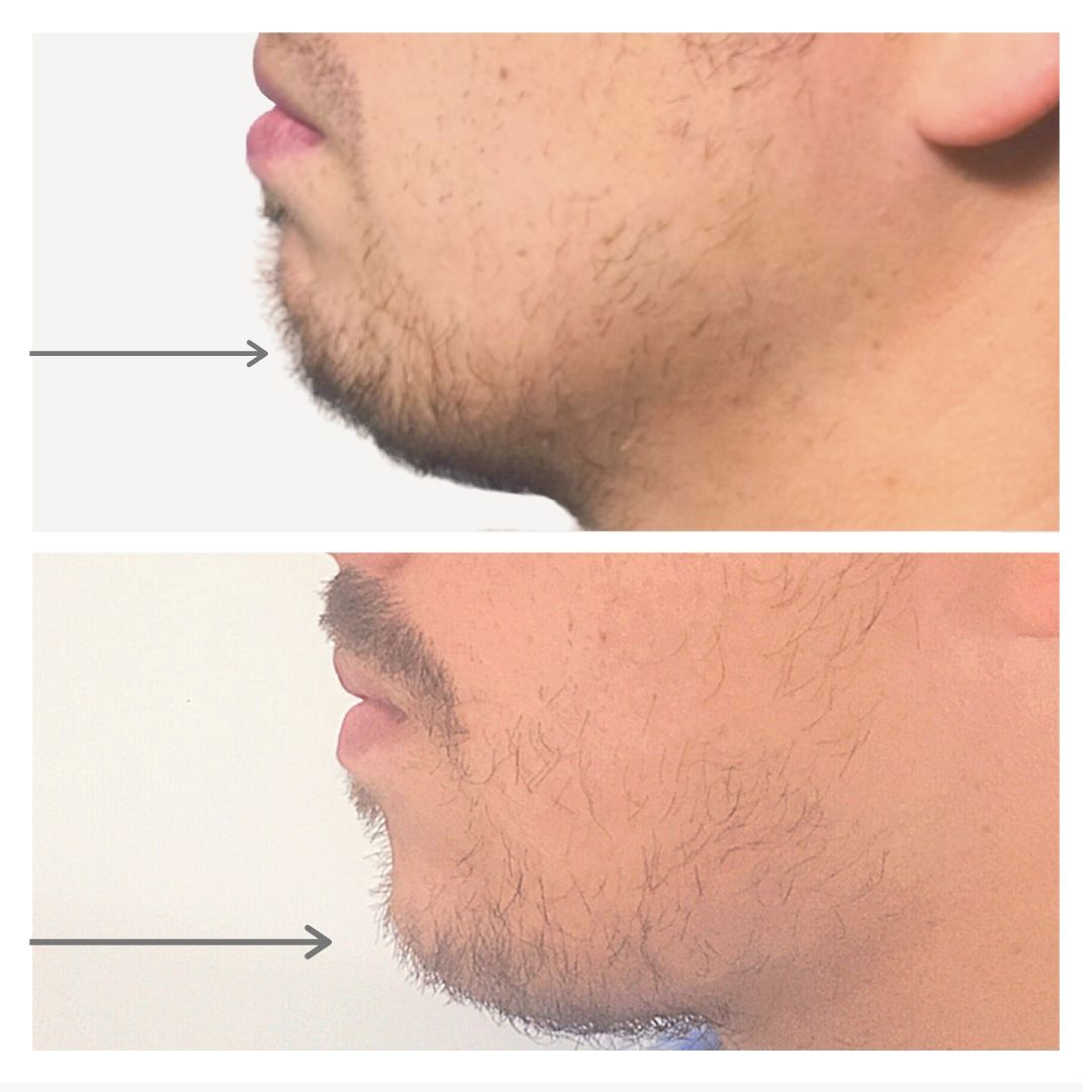 chin botox gilbert az