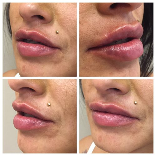 Lip Injections using Restylane