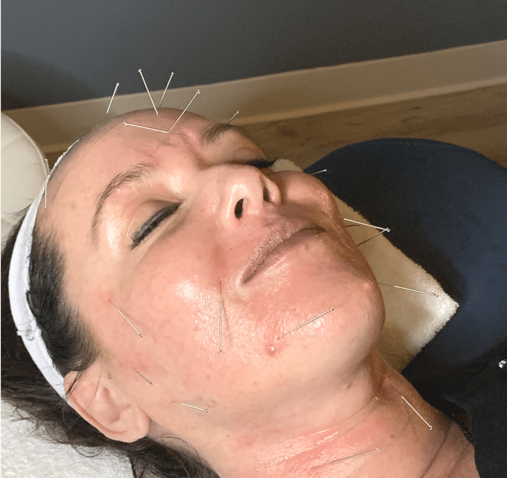 acupuncture facial gilbert az with needles