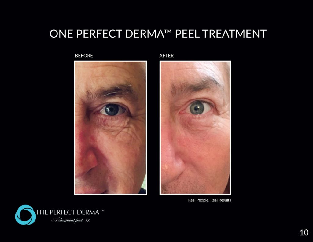 Before and after perfect derma peel gilbert az