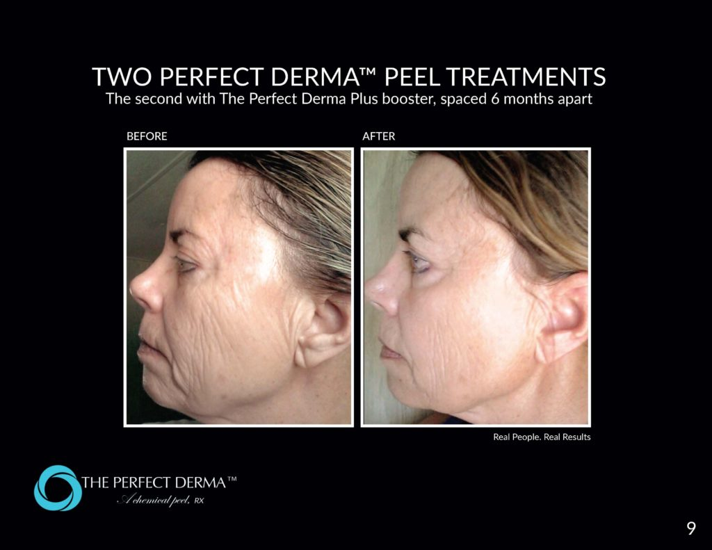 Before and after perfect peel gilbert az