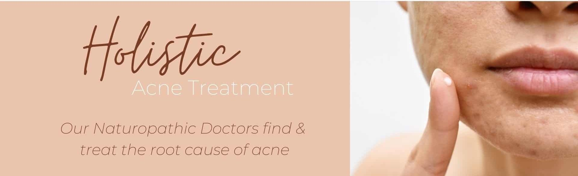 acne treatment GILBERT AZ