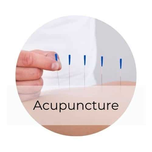 acupuncture gilbert az
