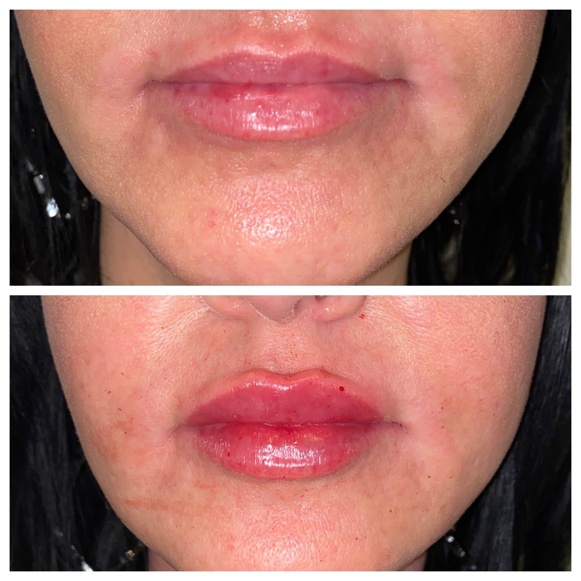 juvederm lip injections gilbert az